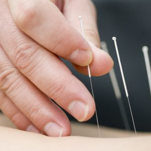 tcmhealingpoints Sarasota Florida acupuncture